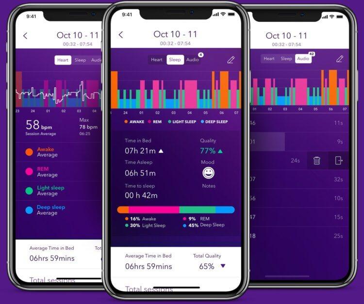 Нет сил ждать watchOS 7? Вот как отслеживать сон на Apple Watch уже сейчас | AppleInsider.ru